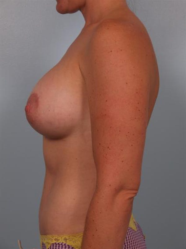 Mommy Makeover Gallery - Patient 1310823 - Image 4