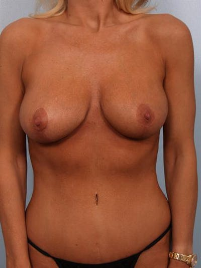 Complex Breast Revision Gallery - Patient 1310819 - Image 6