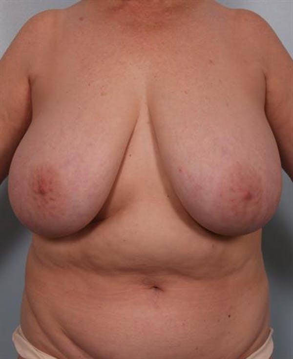 Breast Reduction Gallery - Patient 1310826 - Image 1