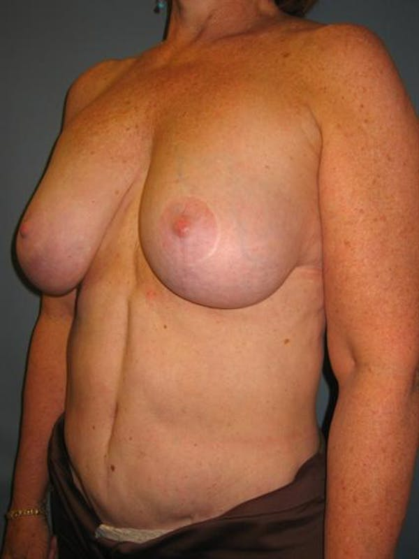 Breast Lift Gallery - Patient 1310820 - Image 5