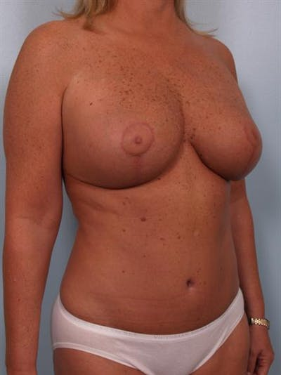 Tummy Tuck Gallery - Patient 1310824 - Image 4