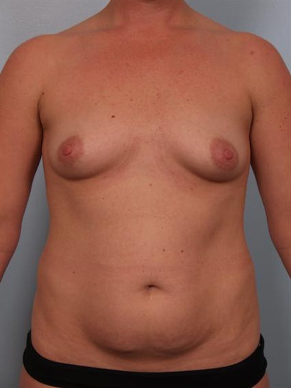 Mommy Makeover Gallery - Patient 1310823 - Image 1