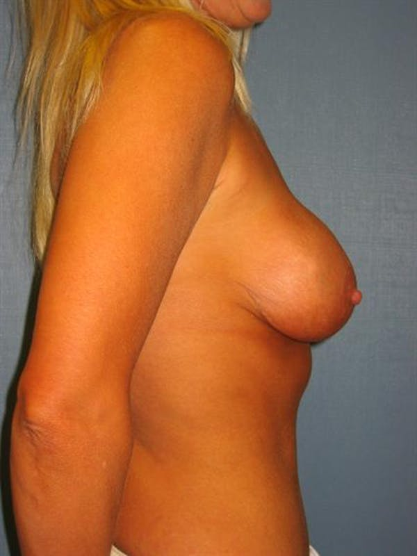 Complex Breast Revision Gallery - Patient 1310819 - Image 7