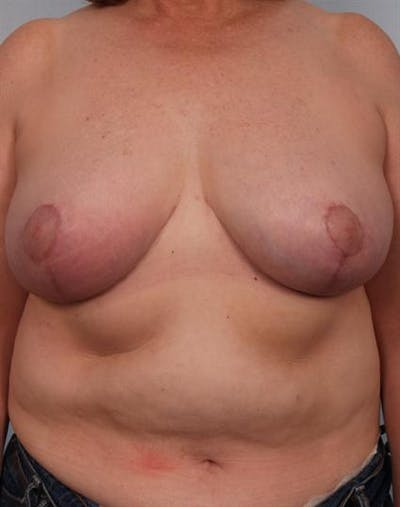 Breast Reduction Gallery - Patient 1310826 - Image 2