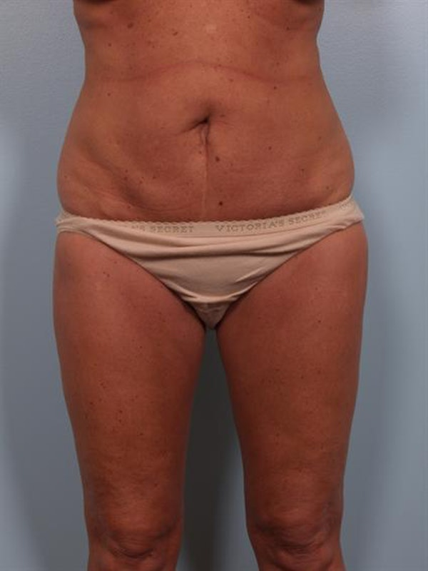 Tummy Tuck Gallery - Patient 1310824 - Image 5