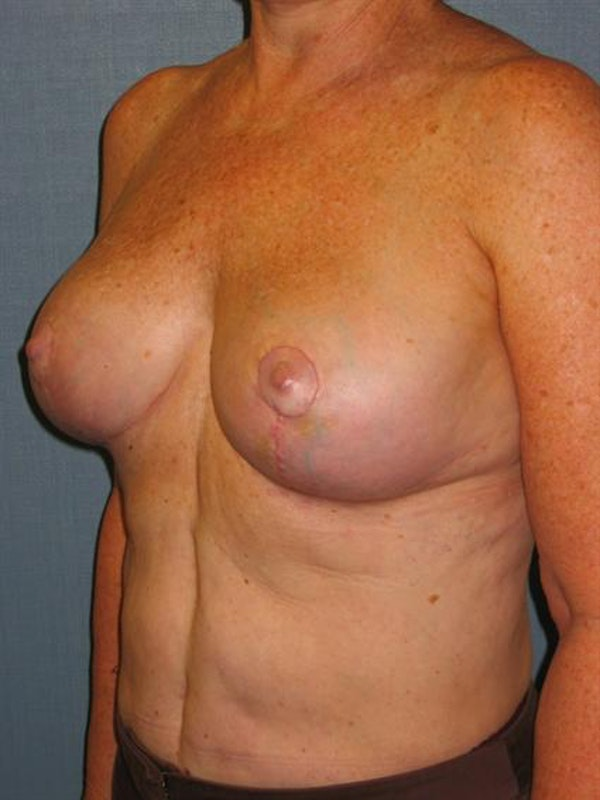 Breast Lift Gallery - Patient 1310820 - Image 6