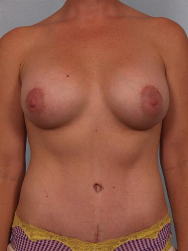 Mommy Makeover Gallery - Patient 1310823 - Image 2