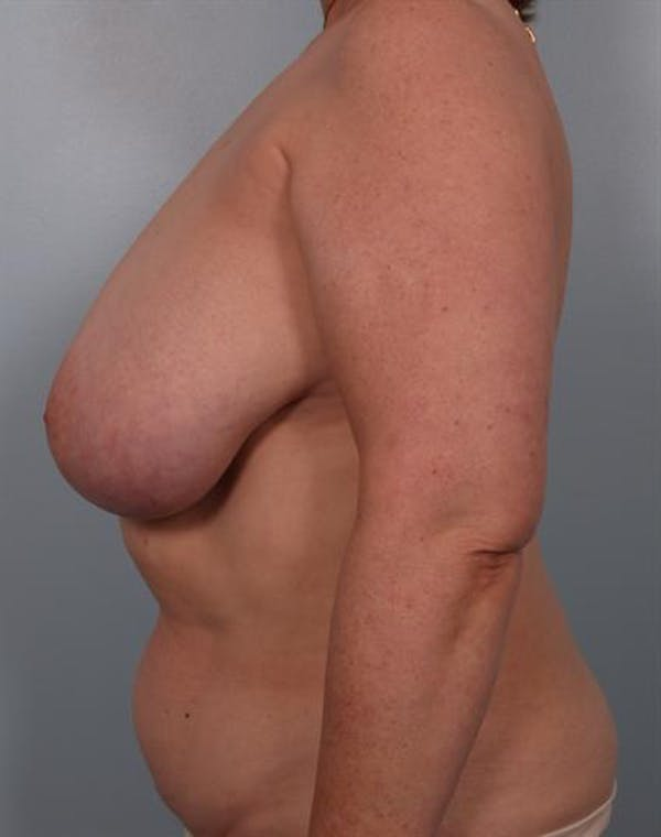 Breast Reduction Gallery - Patient 1310826 - Image 3