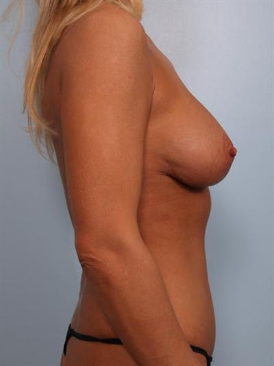 Complex Breast Revision Gallery - Patient 1310819 - Image 8