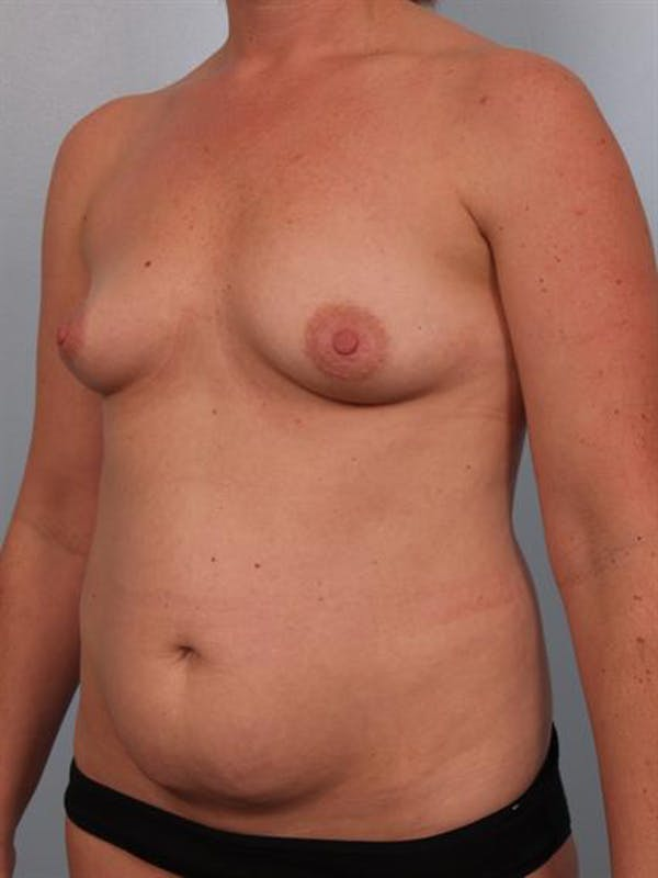 Mommy Makeover Gallery - Patient 1310823 - Image 5