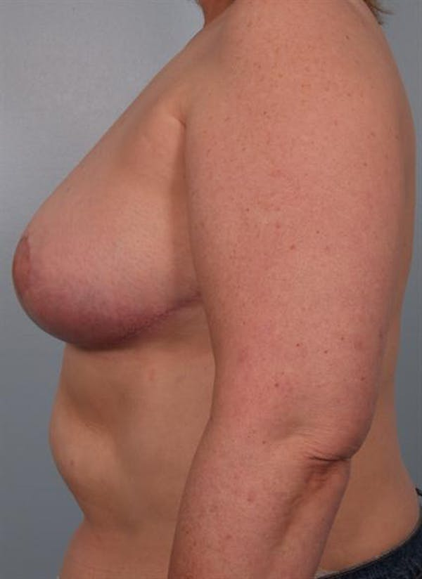 Breast Reduction Gallery - Patient 1310826 - Image 4