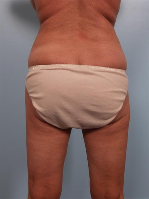 Tummy Tuck Gallery - Patient 1310824 - Image 7