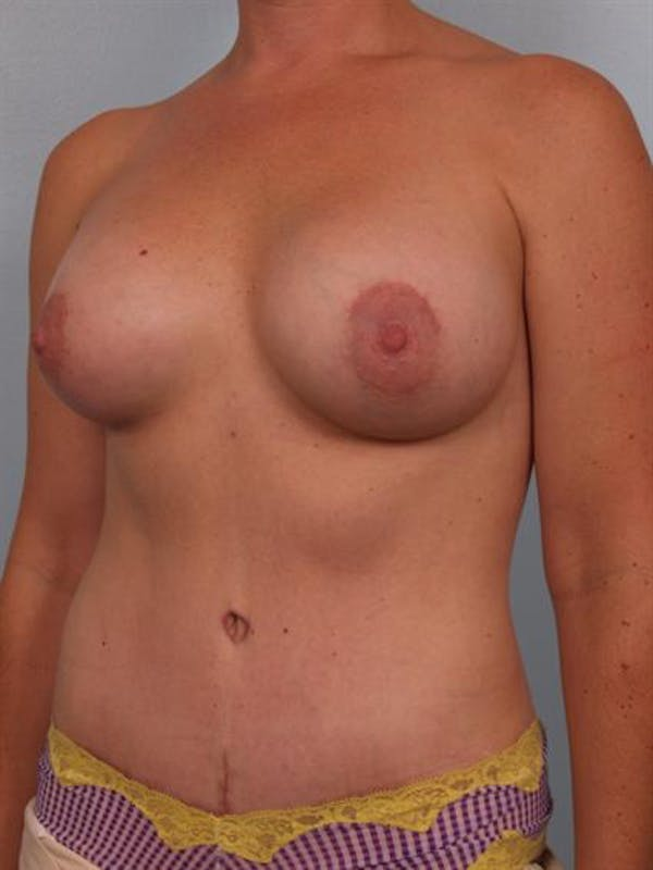 Mommy Makeover Gallery - Patient 1310823 - Image 6