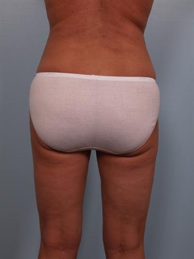 Tummy Tuck Gallery - Patient 1310824 - Image 8