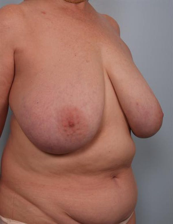 Breast Reduction Gallery - Patient 1310826 - Image 5