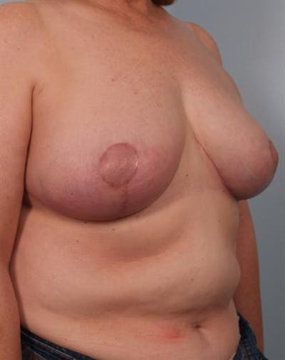 Breast Reduction Gallery - Patient 1310826 - Image 6