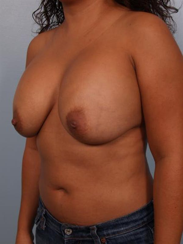 Complex Breast Revision Gallery - Patient 1310828 - Image 5