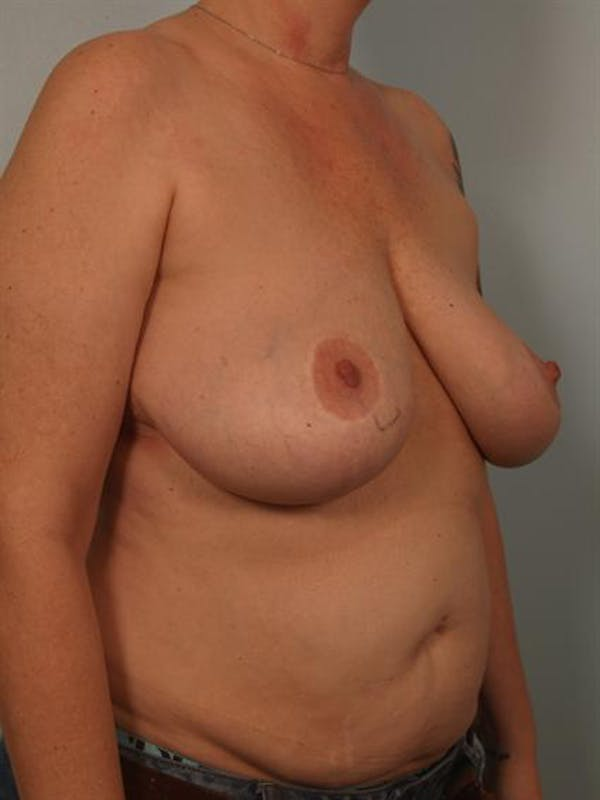 Breast Lift Gallery - Patient 1310829 - Image 3