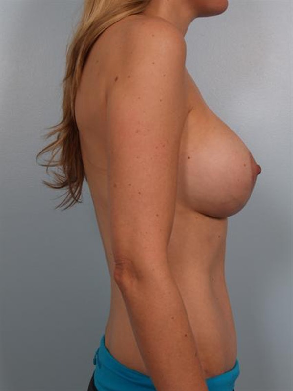 Mommy Makeover Gallery - Patient 1310830 - Image 4