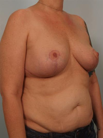 Breast Lift Gallery - Patient 1310829 - Image 4