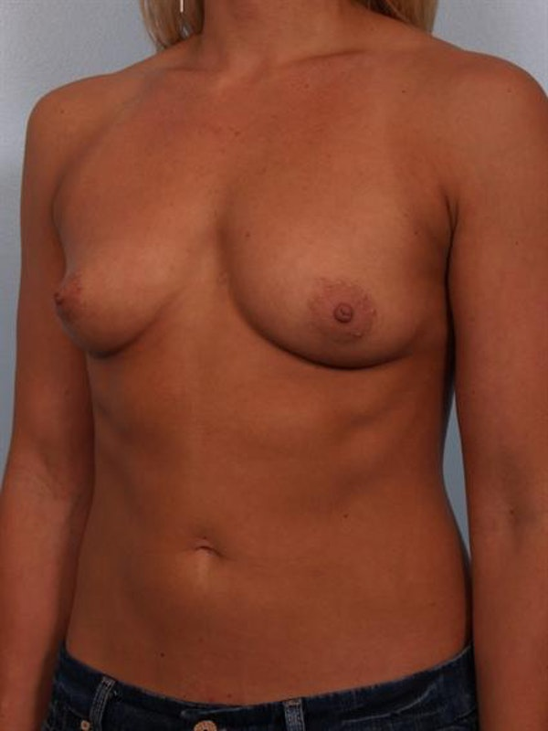 Breast Augmentation Gallery - Patient 1310834 - Image 1