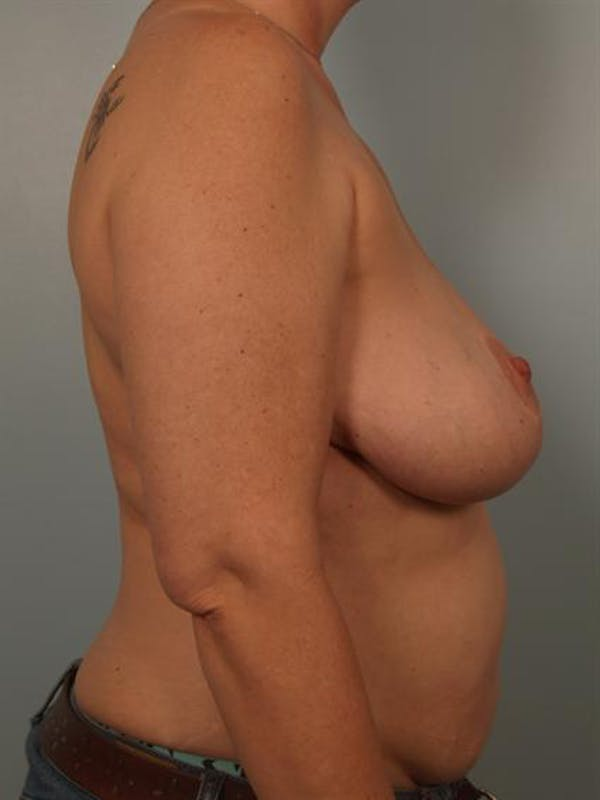Breast Lift Gallery - Patient 1310829 - Image 5
