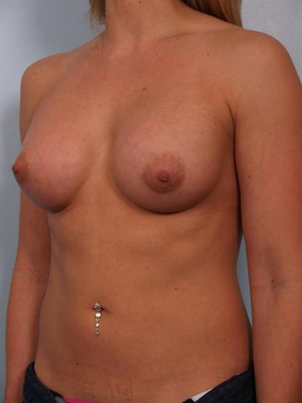 Breast Augmentation Gallery - Patient 1310834 - Image 2