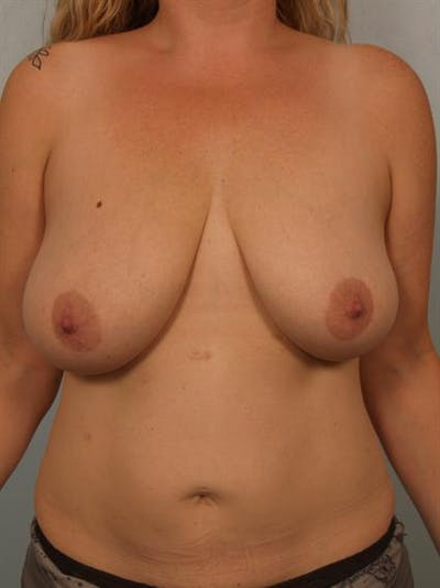 Breast Reduction Gallery - Patient 1310835 - Image 1