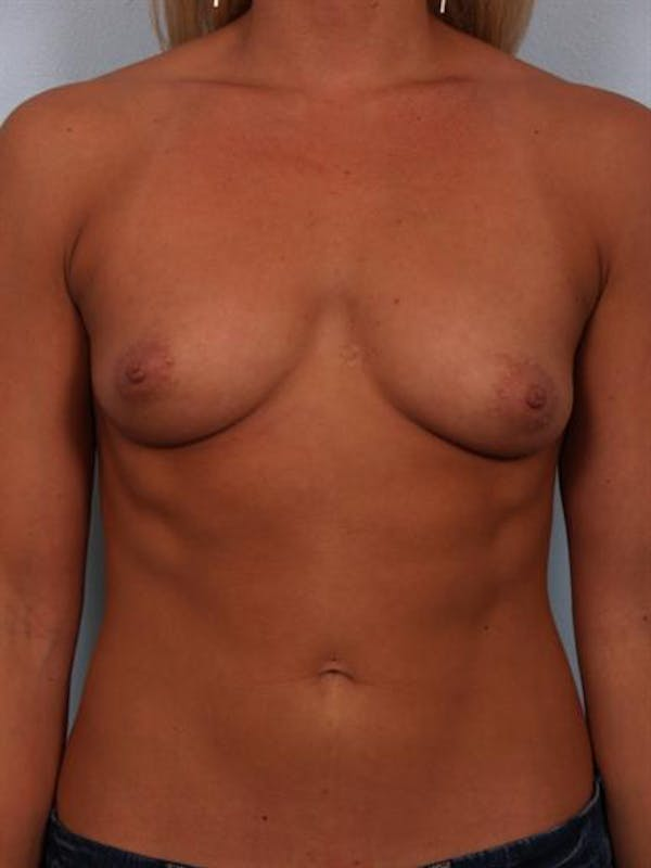 Breast Augmentation Gallery - Patient 1310834 - Image 3