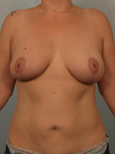 Breast Reduction Gallery - Patient 1310835 - Image 2