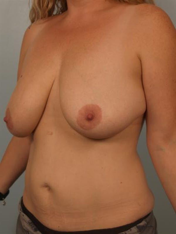 Breast Reduction Gallery - Patient 1310835 - Image 3