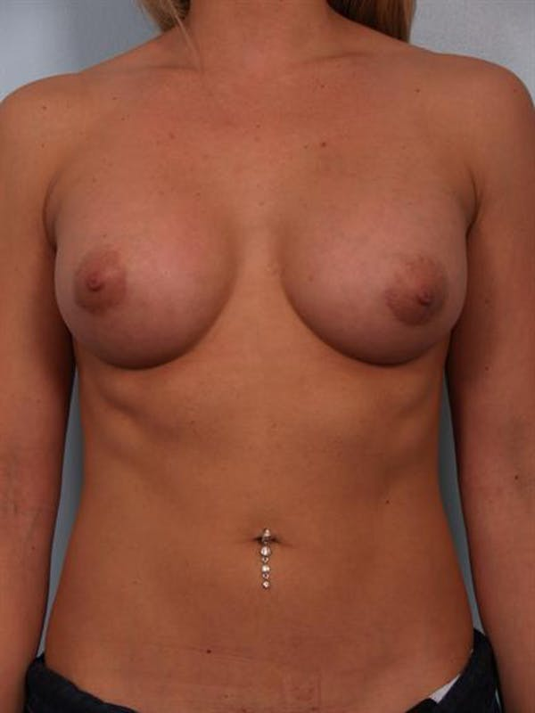 Breast Augmentation Gallery - Patient 1310834 - Image 4