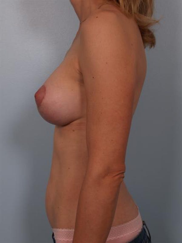 Complex Breast Revision Gallery - Patient 1310837 - Image 4