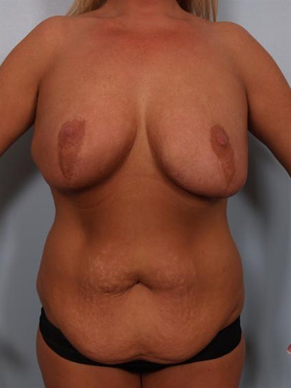 Mommy Makeover Gallery - Patient 1310839 - Image 1