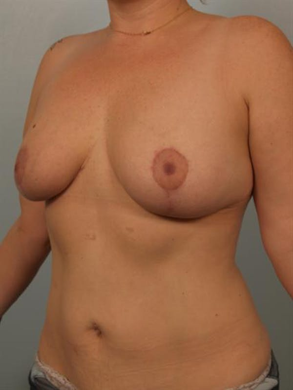 Breast Reduction Gallery - Patient 1310835 - Image 4