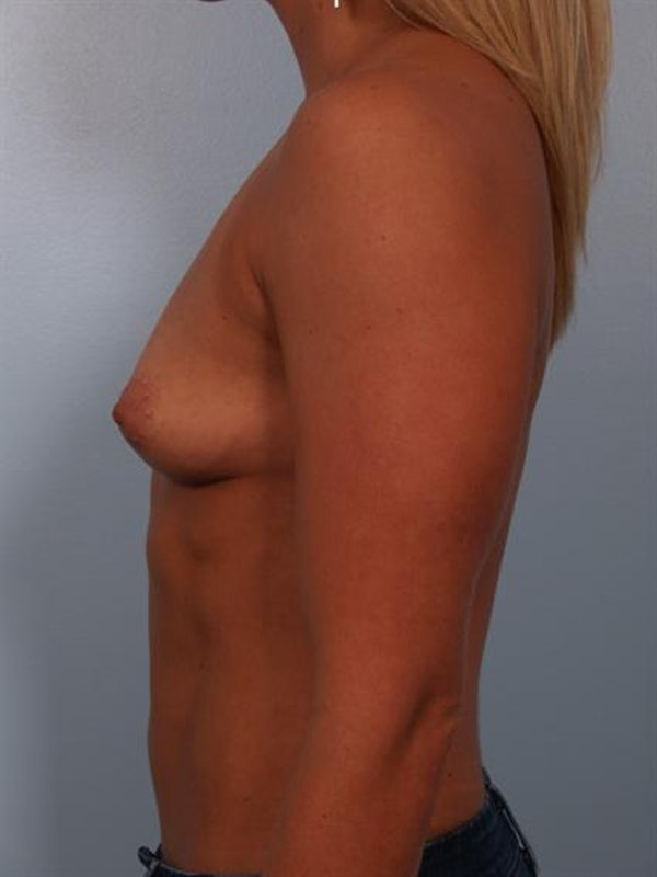 Breast Augmentation Gallery - Patient 1310834 - Image 5