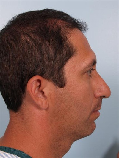 Facial Surgery Gallery - Patient 1310833 - Image 1