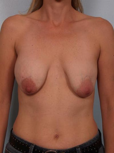 Complex Breast Revision Gallery - Patient 1310837 - Image 1