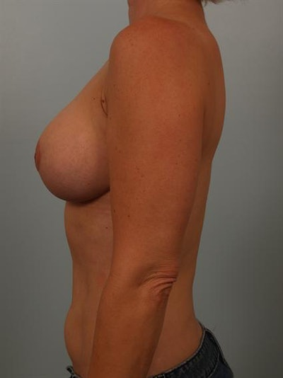 Power Assisted Liposuction Gallery - Patient 1310836 - Image 4
