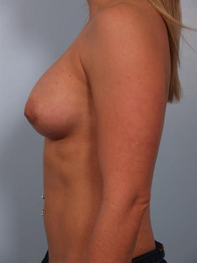 Breast Augmentation Gallery - Patient 1310834 - Image 6