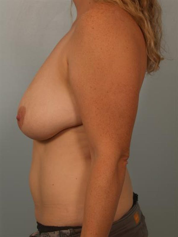Breast Reduction Gallery - Patient 1310835 - Image 5
