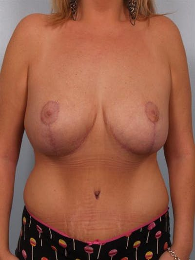 Mommy Makeover Gallery - Patient 1310839 - Image 2