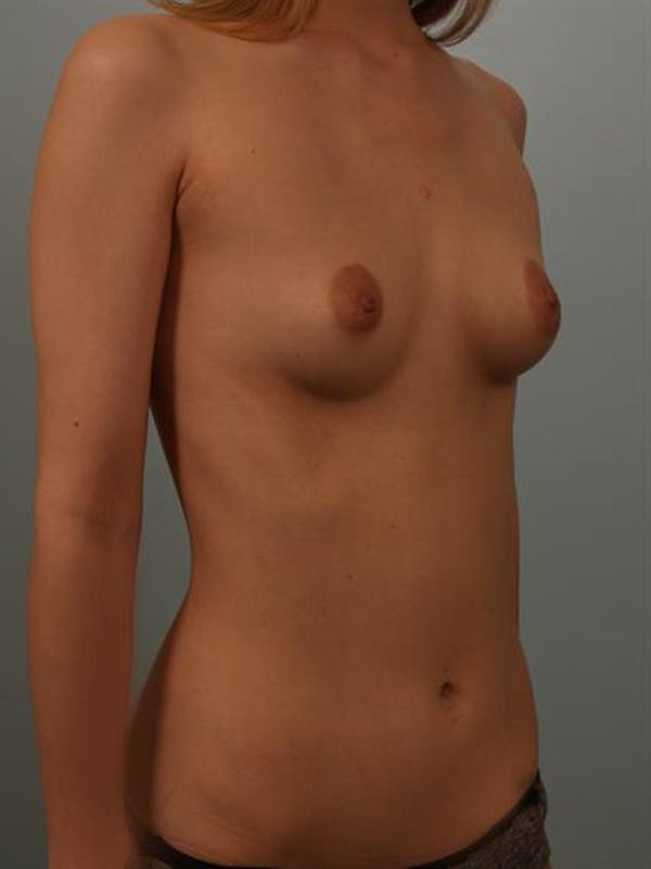 Breast Lift Gallery - Patient 1310838 - Image 3