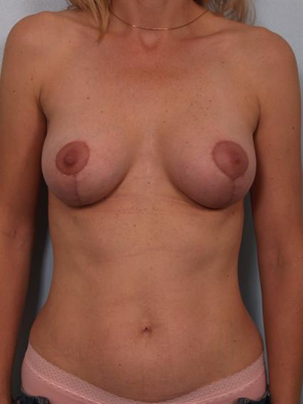 Complex Breast Revision Gallery - Patient 1310837 - Image 2