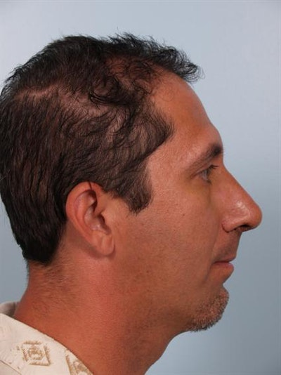 Facial Surgery Gallery - Patient 1310833 - Image 2