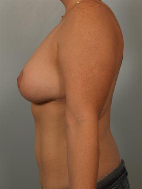 Breast Reduction Gallery - Patient 1310835 - Image 6