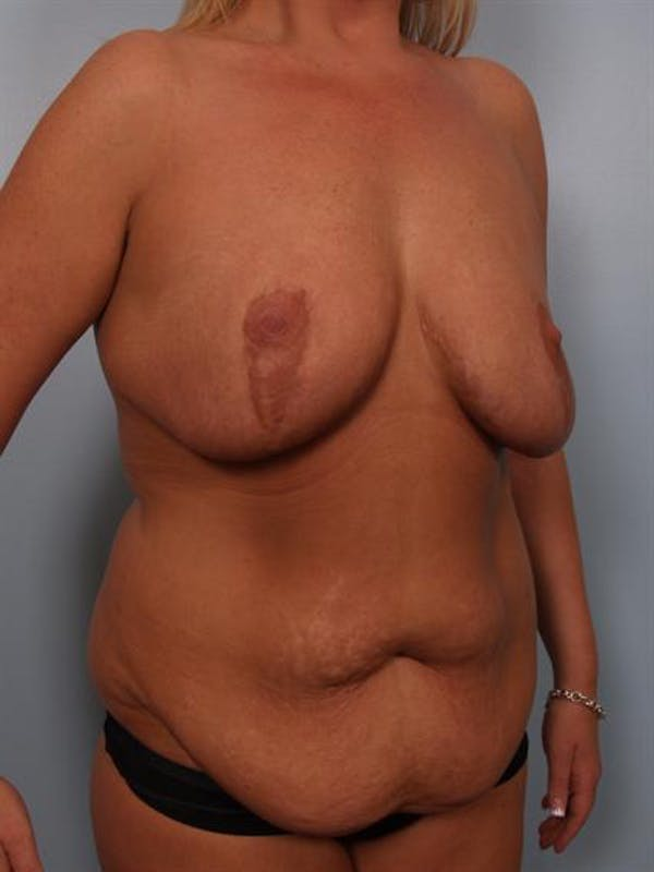 Mommy Makeover Gallery - Patient 1310839 - Image 3