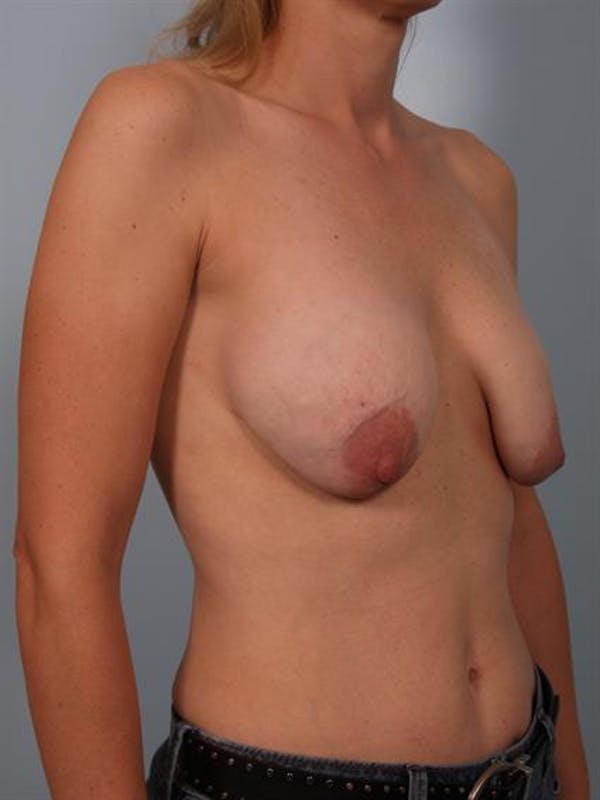 Complex Breast Revision Gallery - Patient 1310837 - Image 5