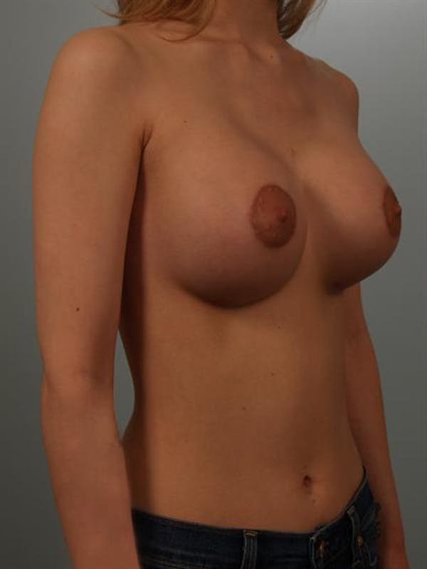 Breast Lift Gallery - Patient 1310838 - Image 4