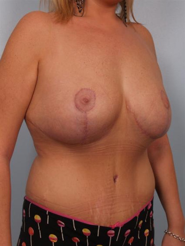 Mommy Makeover Gallery - Patient 1310839 - Image 4